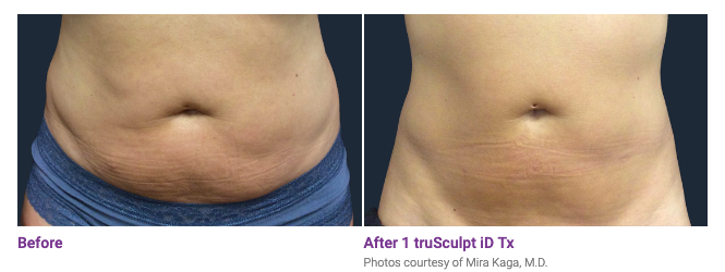 Before and After of Truscuplt 2