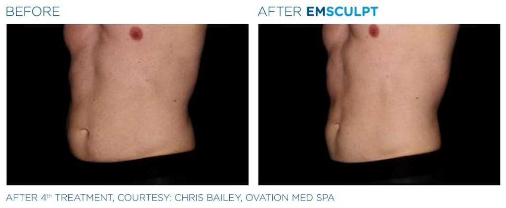 Emsculpt before and After Male