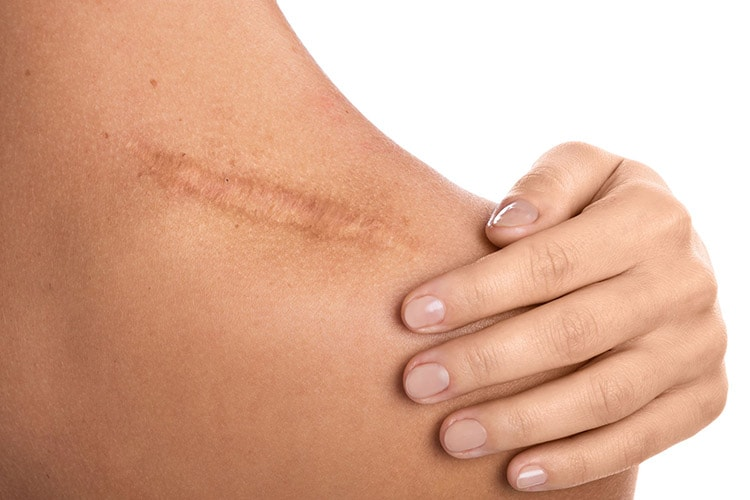 Treatments for | Scars