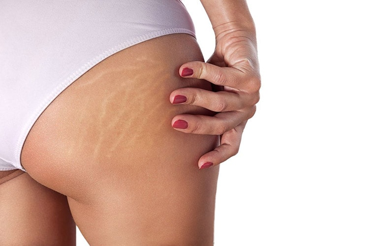 Treatments for | Stretchmarks
