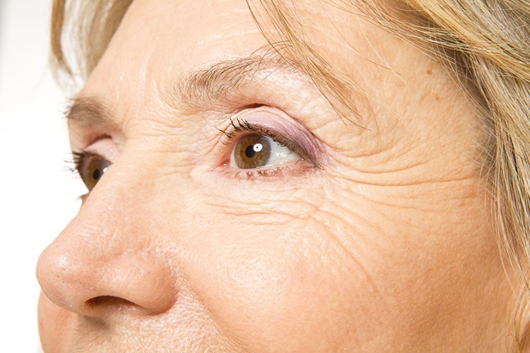 Wrinkles & Fine Lines